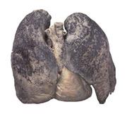 Plíce kuřáka